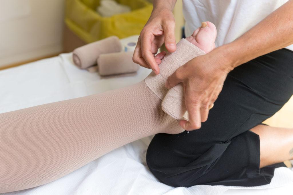 Osoba z obrzękiem nóg podczas kompresjoterapii